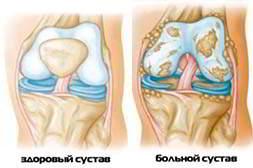 Суставитин предотвращает суставные болезни