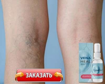 Заказать VenaHeal на официальном сайте.