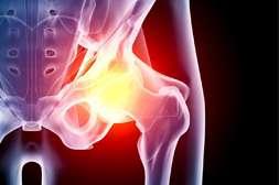 Польза Синергель в останавке деструктивных процессов в суставах и позвонках.